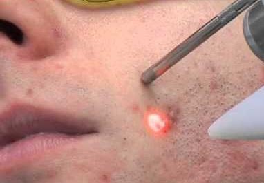 Лазерная терапия в лечение акне Глайтон Чистая улица Чебоксары