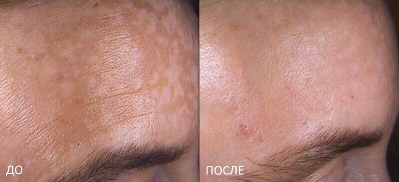 Отбеливание кожу лица лимонным соком